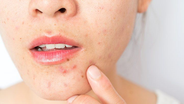 Read more about the article Acne Health Center